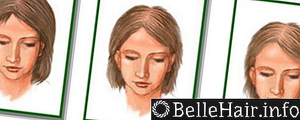 Хроническая телогеновая алопеция - Все о росте волос
